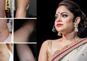 Sumona Chakravarti badly suffers wax SKIN BURN, SLAMS online service provider