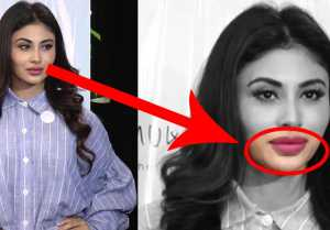 Mouni Roy's Lip Surgery goes wrong; Watch Video