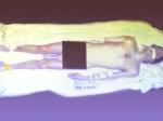 Michael Jackson Autopsy Picture Online