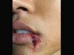 Karrueche Tran Blood Lip Twitter Fans React Chris Brown