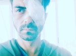 Arjun Rampal Suffers From An Eye Injury Is Left Disoriented