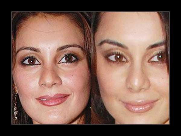 Bollywood Actress Plastic Surgery Disaster Koena