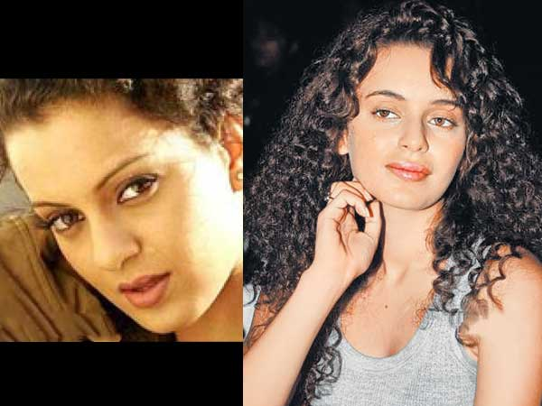 Bollywood actressCosmetic surgery