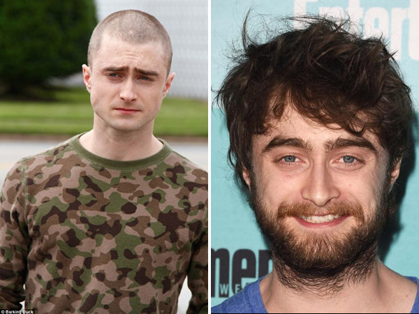 Daniel Radcliffe Shaved His Head, Goes Bald For Imperium
