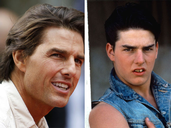 5 Hollywood Celebrities Who Have Gone Through Cosmetic ... | 600 x 450 jpeg 57kB