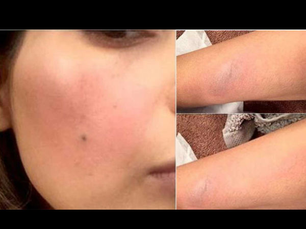 Alia Suffers Multiple Burns On Her Face & Hands