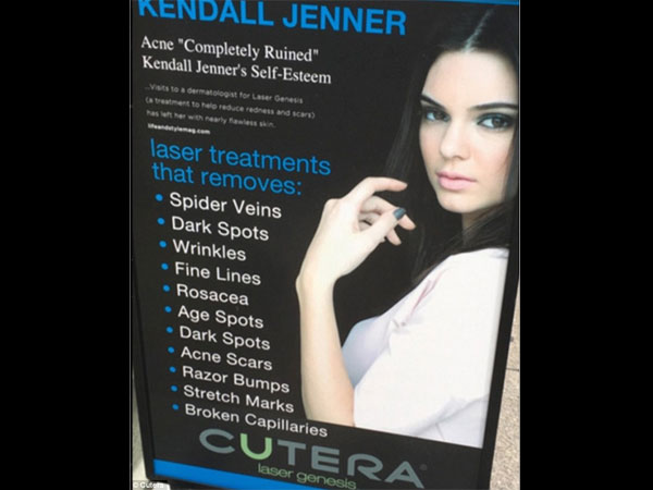 Kendall Jenner Suing Acne Laser Company Cutera For Using Her Picture Without Consent!