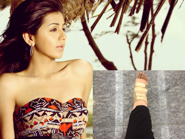 Nikki Galrani Injured Leg