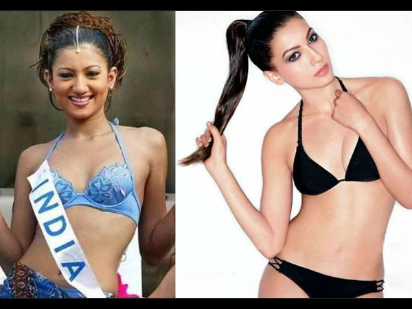 Shocking Plastic Surgeries Of Bollywood Before And After