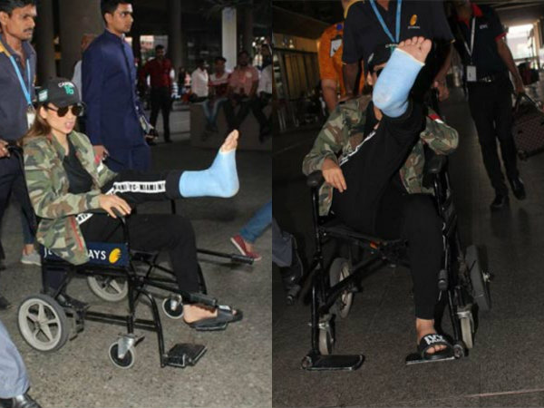 So SAD! Kangana Ranaut Injures Her Leg On The Sets Of Manikarnika