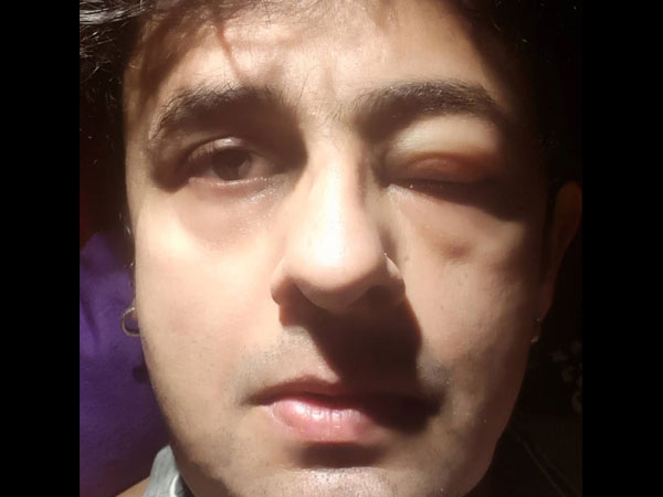 Sonu Shared A Picture Of His Swollen Eye