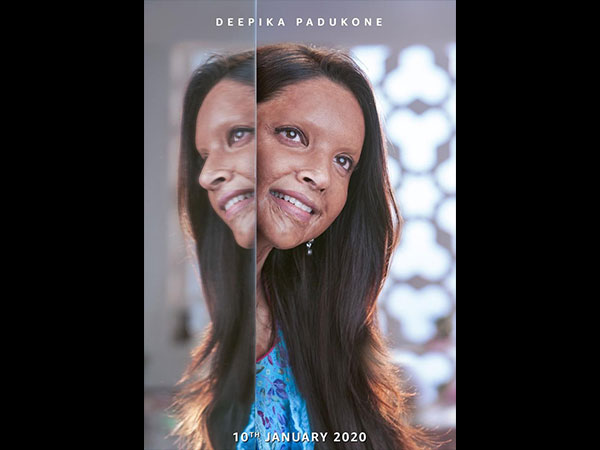 Chhapaak: Deepika Padukone As Malti Is An Epitome Of Strength & Courage In The Film's First Look!