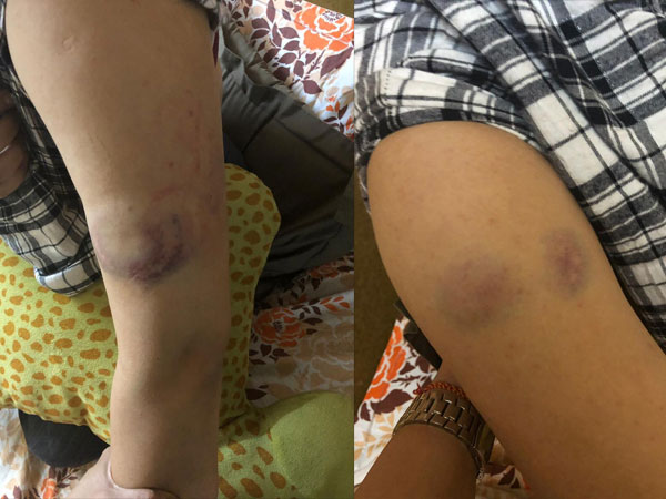 Subuhi Shares Pictures Of Her Injuries