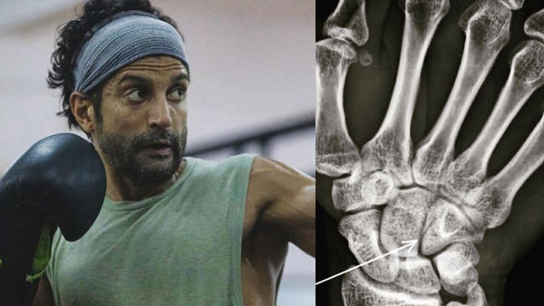 Farhan Akhtar Suffers Hairline Fracture While Shooting For Toofan; Shares X-Ray Image