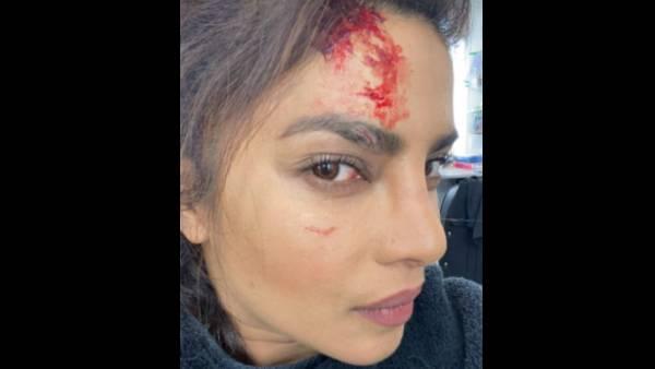 Priyanka Chopra Reveals Her Injury While Shooting Her Upcoming Series Citadel