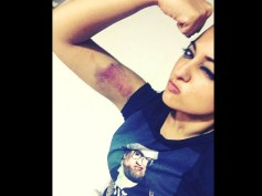 Ouch! Sonakshi Sinha Got Injured While Shooting For An Action Scene In 'Akira'