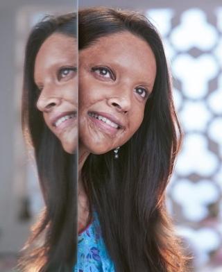 दीपिका पादुकोण की आगामी फिल्म 'छपाक' का पहला लुक हुआ जारी देखकर रोंगटे खड़े हो जायेंगे!