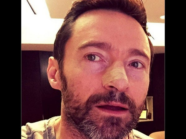 Hugh Jackman's Skin Cancer Treatment Continues