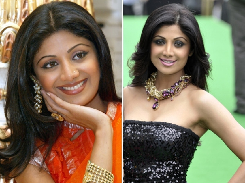Bollywood Beauties and their Surgeries Photos